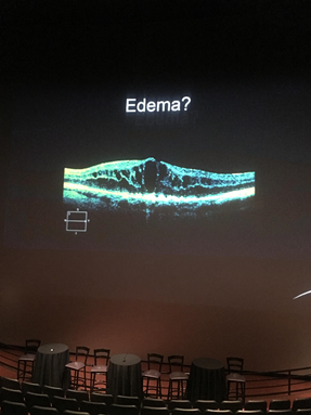 Slide From Edema Talk