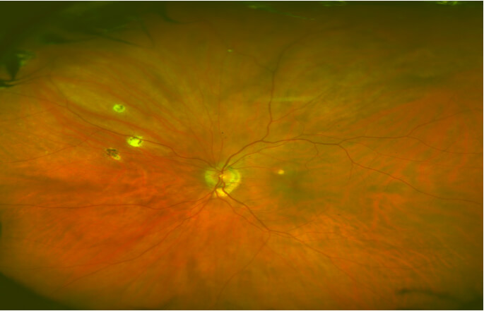 Photo of Histoplasmosis spots on retina