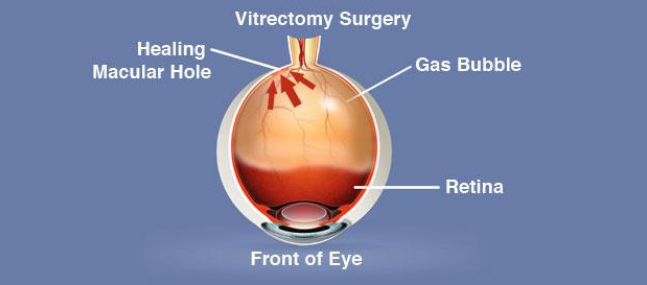 Vitrectomy Surgery Diagram
