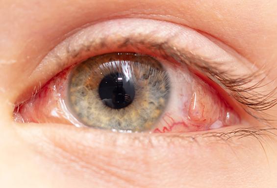 Close Up Eye Before Vitrectomy