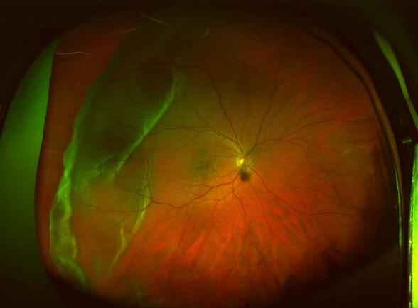 Large Tear Detached Retina