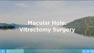 Macular Hole Surgery