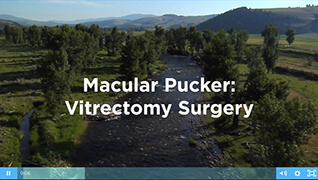 Macular Pucker Video