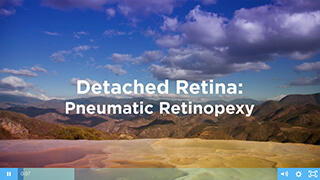 Detached Retina Video
