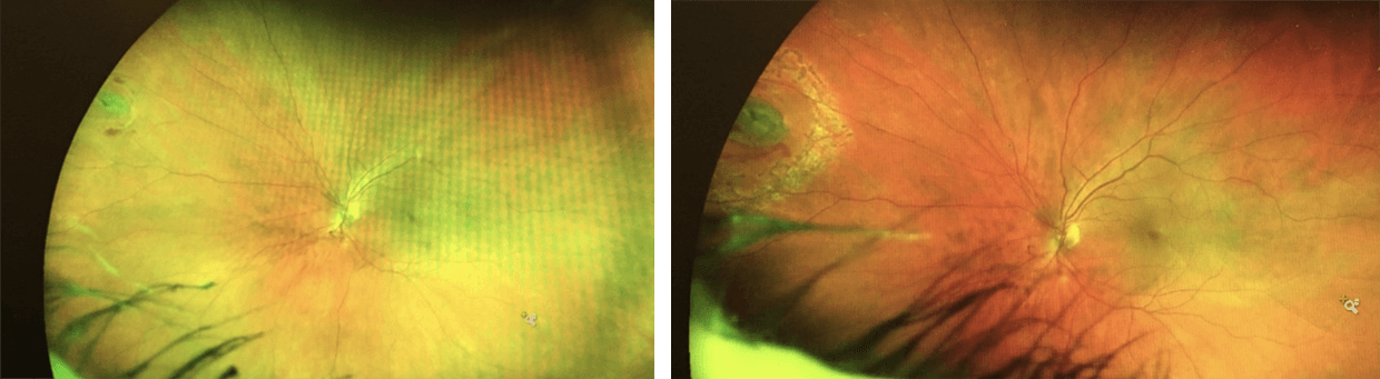 Retinal tear before and after treatment