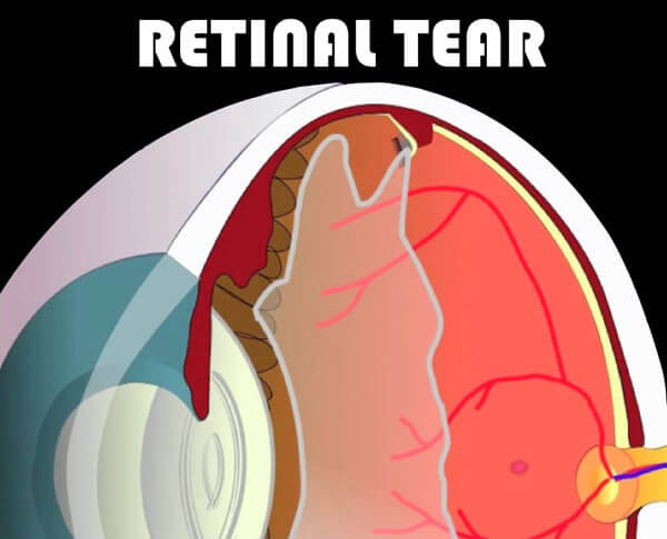 Retinal Tear occuring from Vitreous Detachment