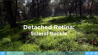 Scleral Buckle Video