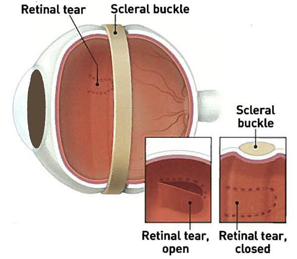 Retina Tear and Scleral Buckle Illustration