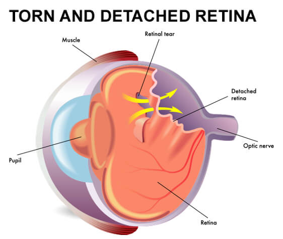 Torn and Detached Retina Diagram